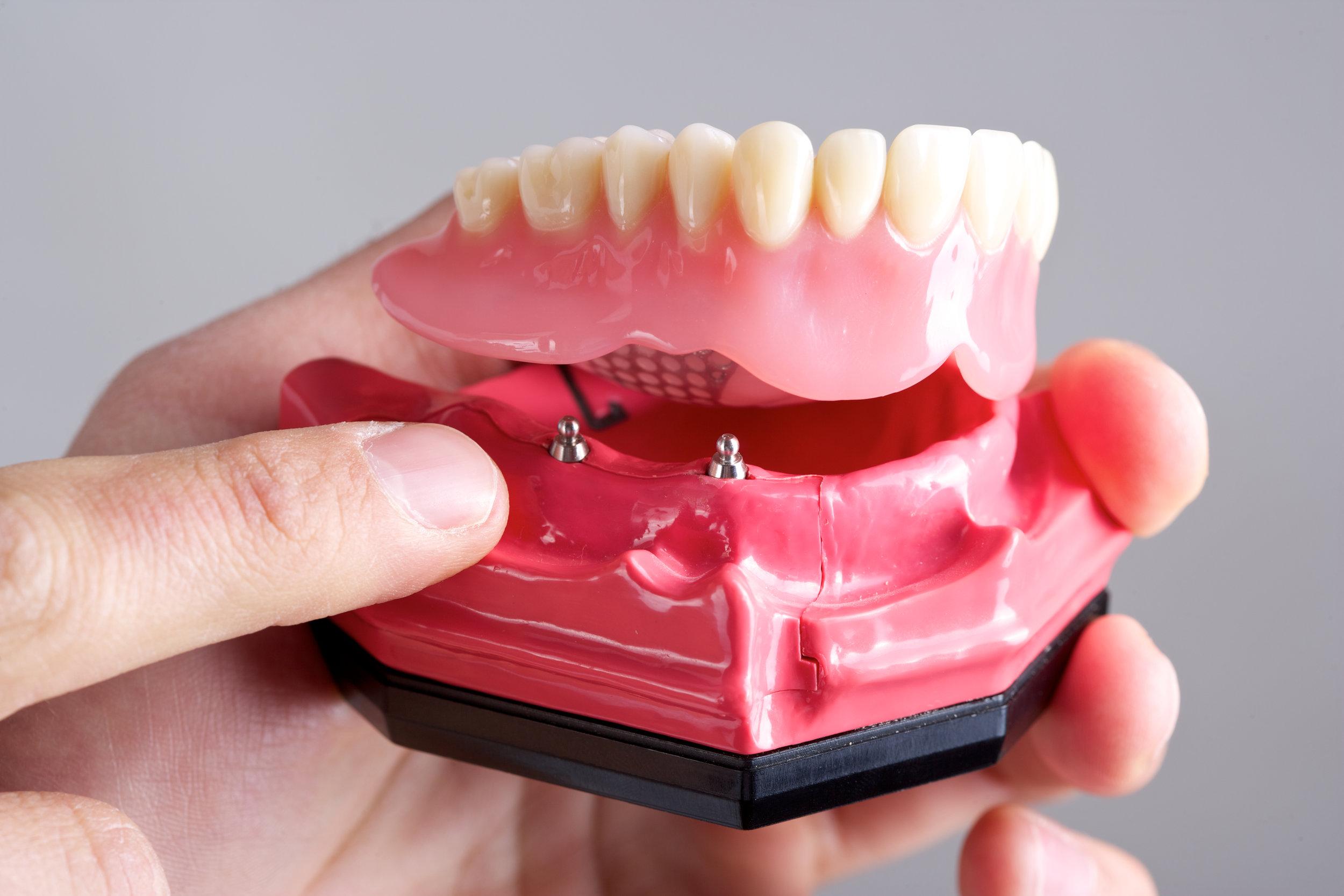Dental Implants with Eastlake Center for Implants and Restorative Dentistry