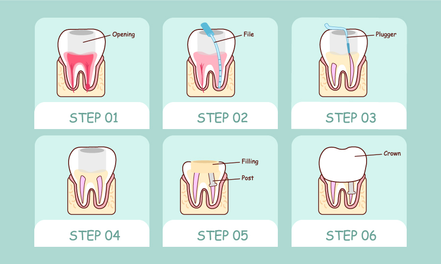 Root Canal Treatment with Eastlake Center for Implants and Restorative Dentistry