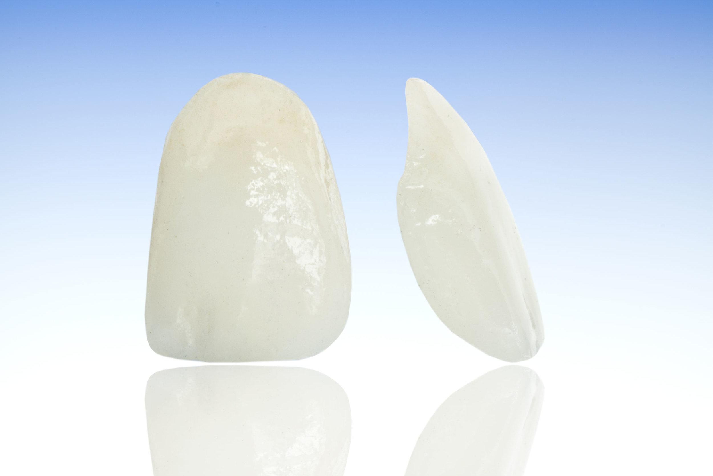Porcelain Veneers with Eastlake Center for Implants and Restorative Dentistry
