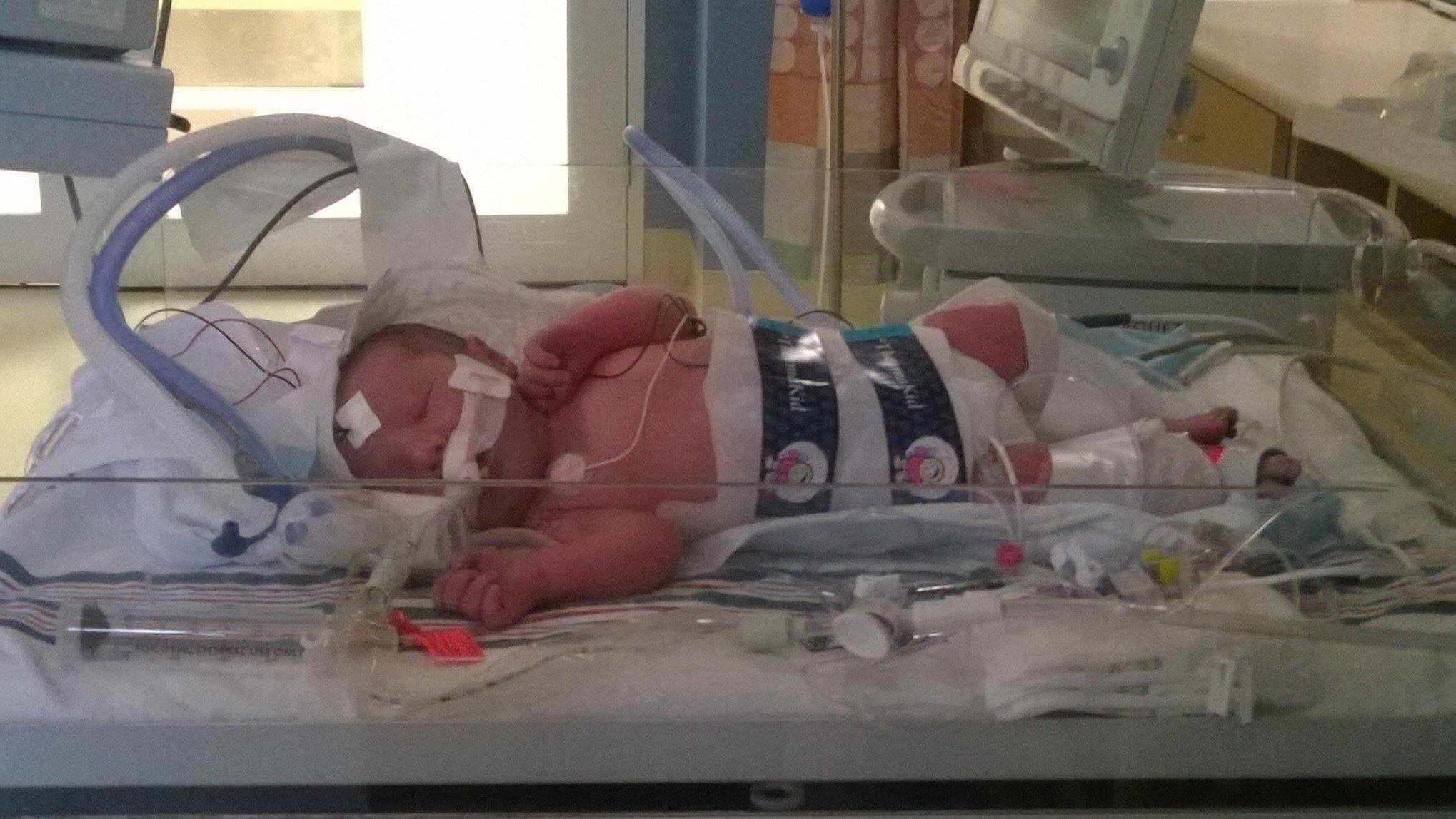 Baby Parker - Minutes after Parker was born, he suffered a severe seizure which led him to being life-flighted to OKC.