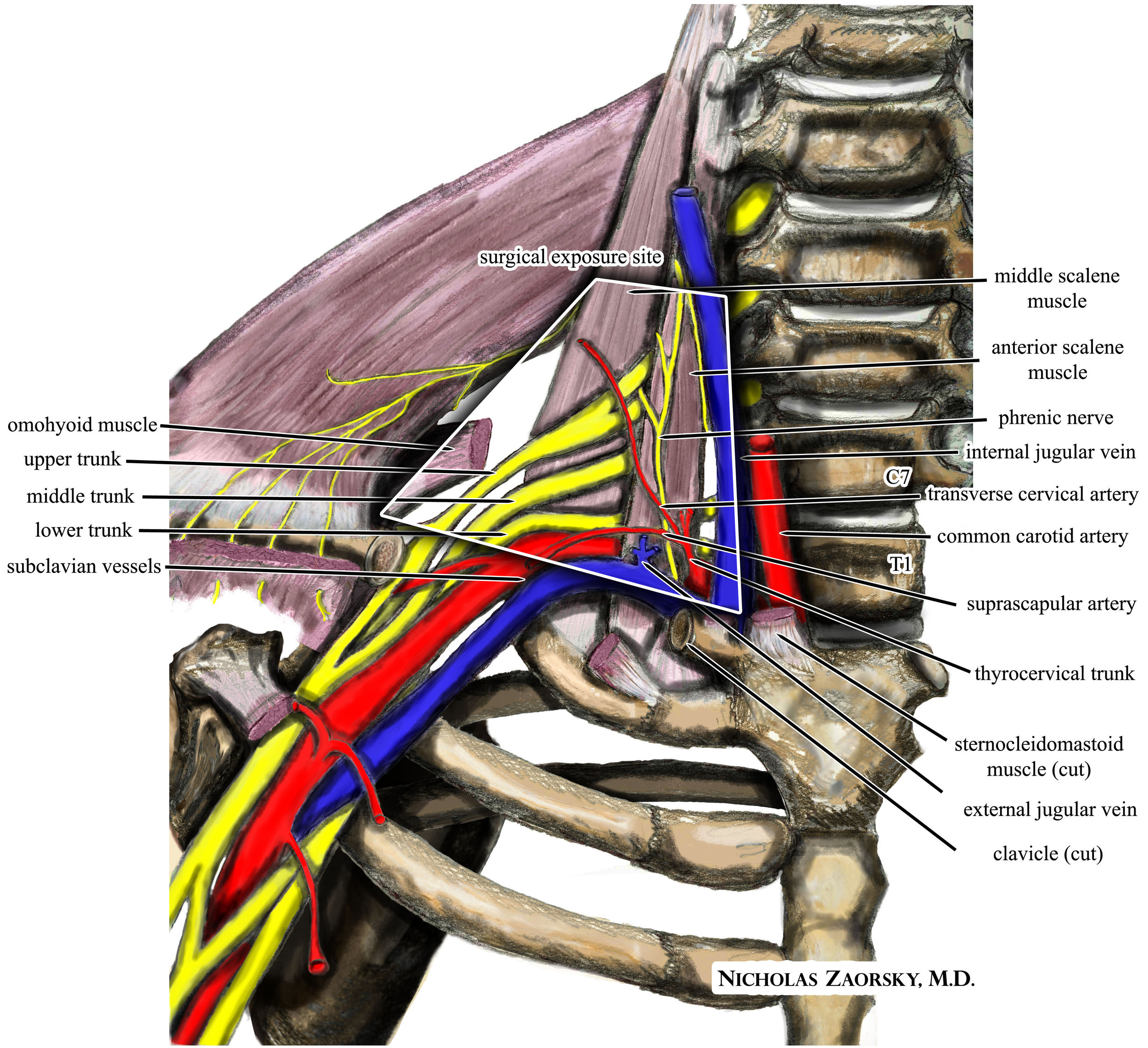 Wikipedia_medical_illustration_thoracic_outlet_syndrome_brachial_plexus_anatomy_with_labels.jpg