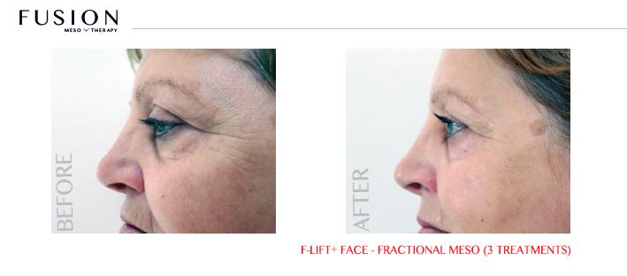 Fusion-BA-F-LiftFace-Fractional-Meso-3-treatments.jpg