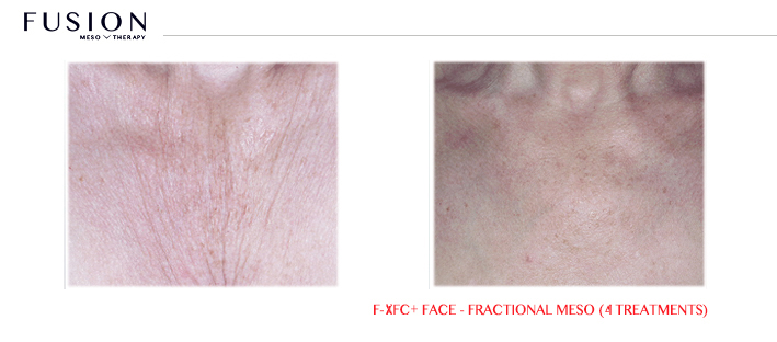 Fusion-BA-F-XFCFace-Fractional-Meso-4-treatments.jpg