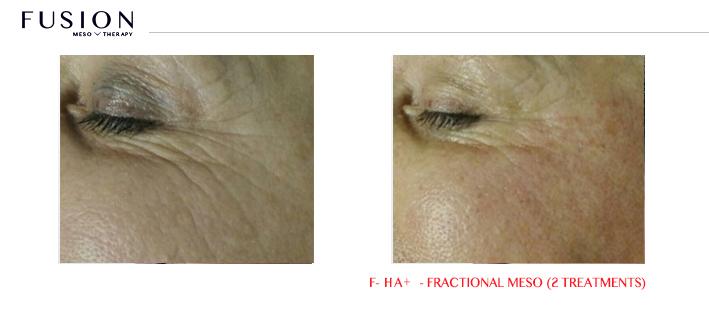 Fusion-BA-HA-Fractional-Meso-2-treatments.jpg