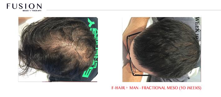 Fusion-BA-HAIR-MAN-Fractional-Meso-10-weeks.jpg