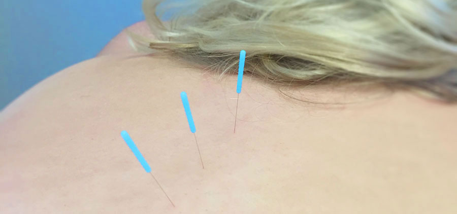 Acupuncture Health and Treatment