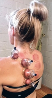 Cupping photo.jpeg