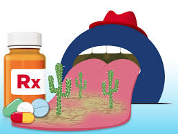 dry mouth dentist