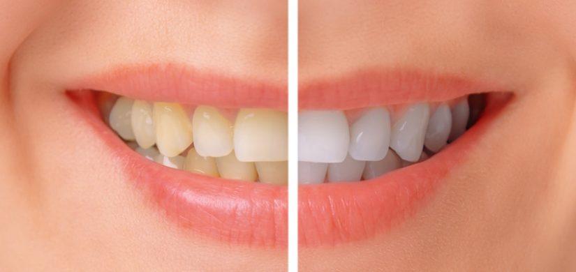 teeth-whitening-lakefront.jpg