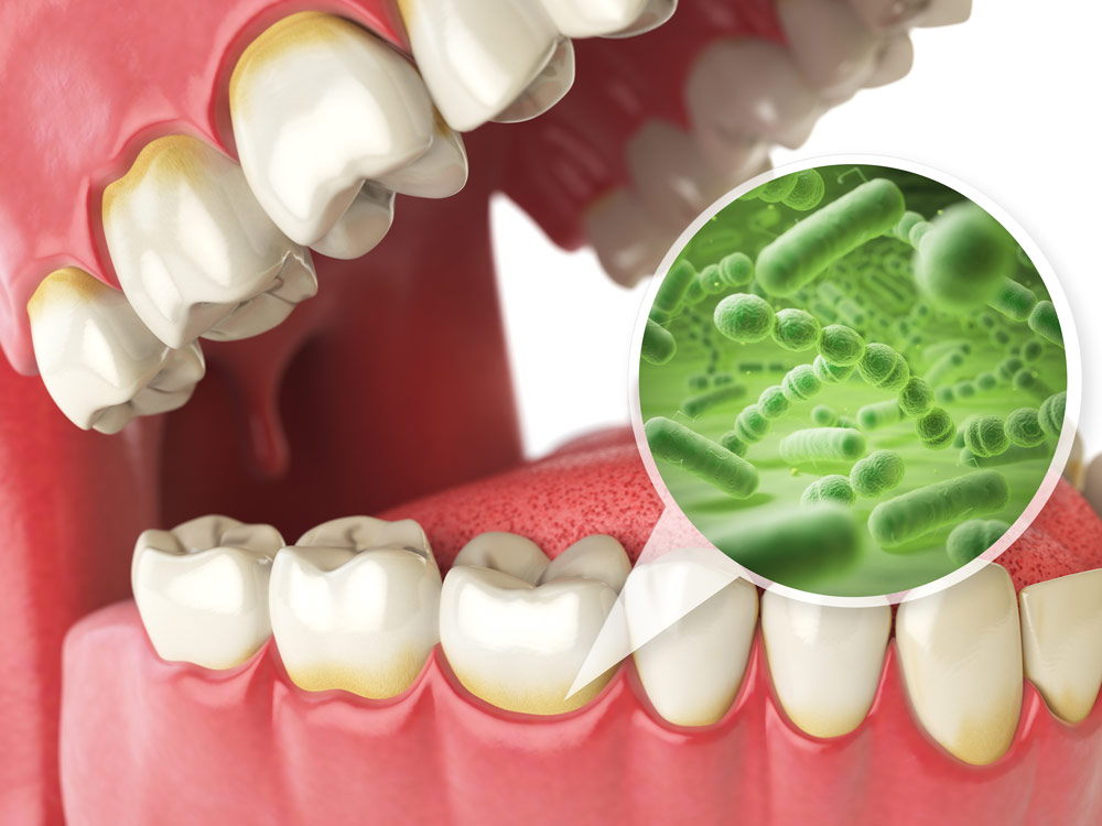 Bad bacteria in the mouth