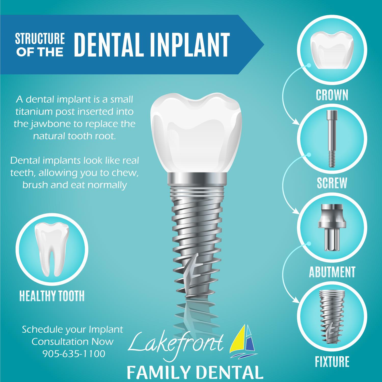 dental-implants-cost.jpg