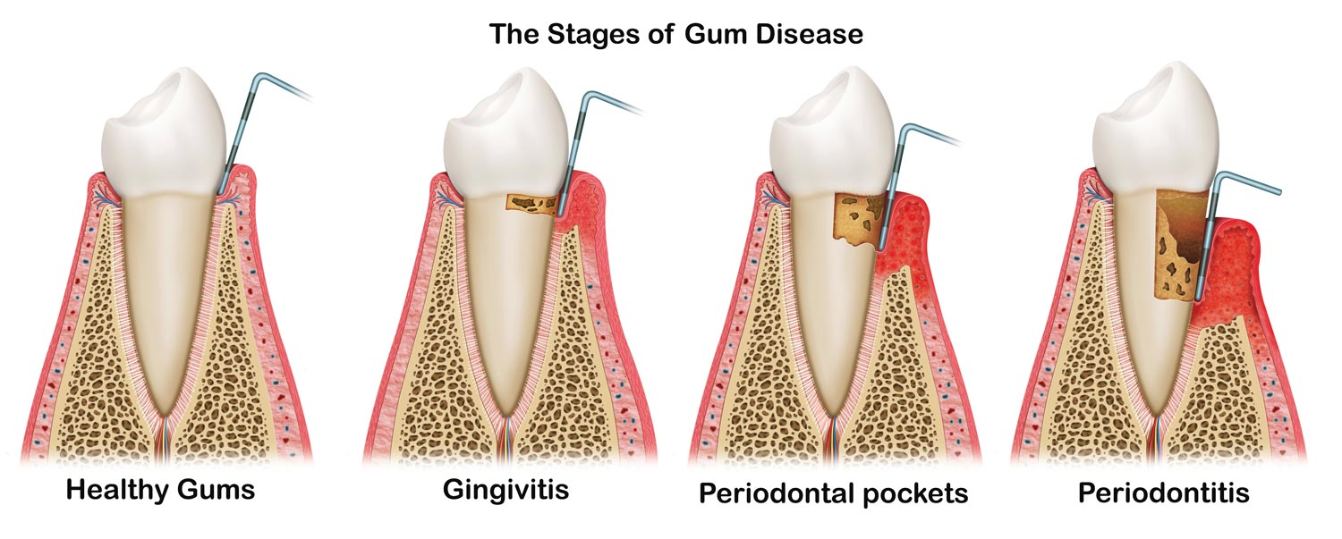 Burlington dentist - the stages of gum disease