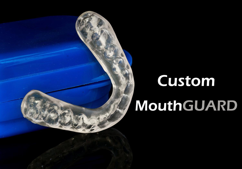 Burlington dentist - Custom mouthguard