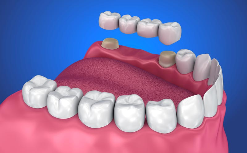 Dental Bridges - A dental bridge is a set of fixed (non-removable) appliances designed to replace missing teeth. If you have healthy teeth on each side of a missing tooth, your dentist files down two healthy teeth to prepare them for the bridge.