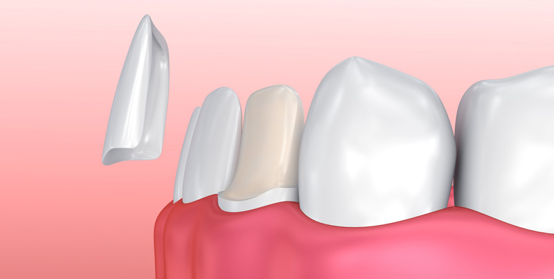 Dental Veneer - Dental veneers are thin pieces of durable, tooth shaped porcelain that can be custom shaped and coloured to match your natural teeth. Our dental lab will match veneers to your natural teeth colour. The shape, lengths, size and distance between the teeth can be adjusted. Porcelain veneers are an excellent cosmetic dentistry option that can dramatically change your appearance.