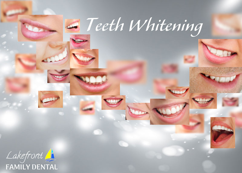 Teeth whitening - Teeth whitening is the most common cosmetic dental procedure. It allows you to achieve a bright, beautiful smile within a short time. At our Burlington dentist, we offer two types of teeth whitening services: in-office teeth whitening service and take home kits with a custom made mouth mould. No matter what option you choose, you will be able to see results.Please keep in mind that you should consult with our dentist before any teeth whitening treatment, especially if your a prone to tooth sensitivity or have excellent dental treatment.