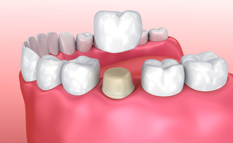 Dental Crown - A dental crown is most commonly used to protect and strengthen a tooth that cannot be restored using natural fillings or other restorative options. A dental crown, also called a dental cap, is a hollow, artificial tooth used to cover a damaged or decayed tooth.