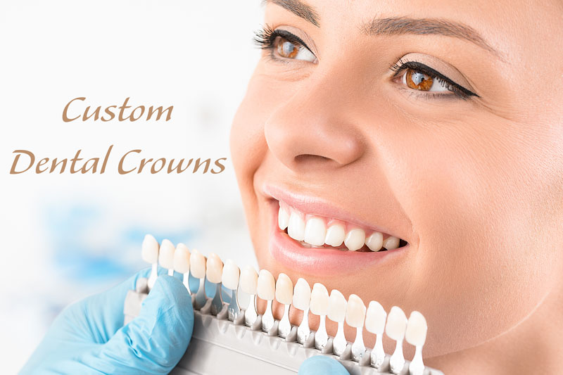 Dental crown services - Choosing your custom dental crown requires attention to details. The shade of white, translucency for natural tooth appearance, the shape of your crown cap are just a few examples.