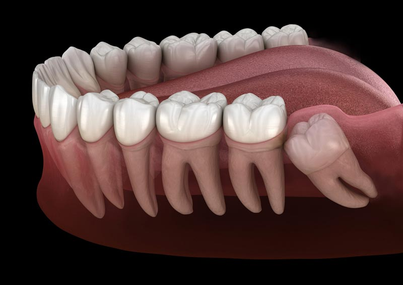 Impacted Wisdom Tooth - When wisdom teeth grow in crooked, there is a high probability that they can negatively affect the teeth surrounding them. What that means is that the misaligned tooth could cause crowding, damage to adjacent teeth, or even jaw and nerve damage. It's best to professionally remove wisdom teeth that pose a threat to the health of the rest of the mouth.