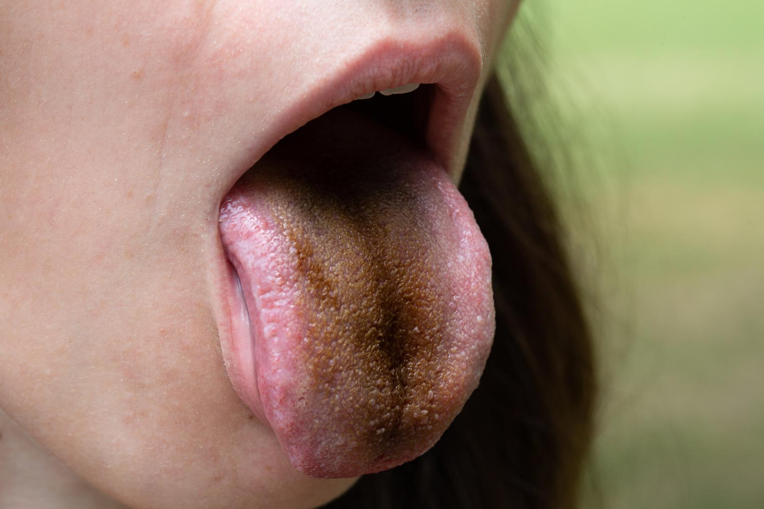 Longer papillae can retain more bacteria which will appear darker or black