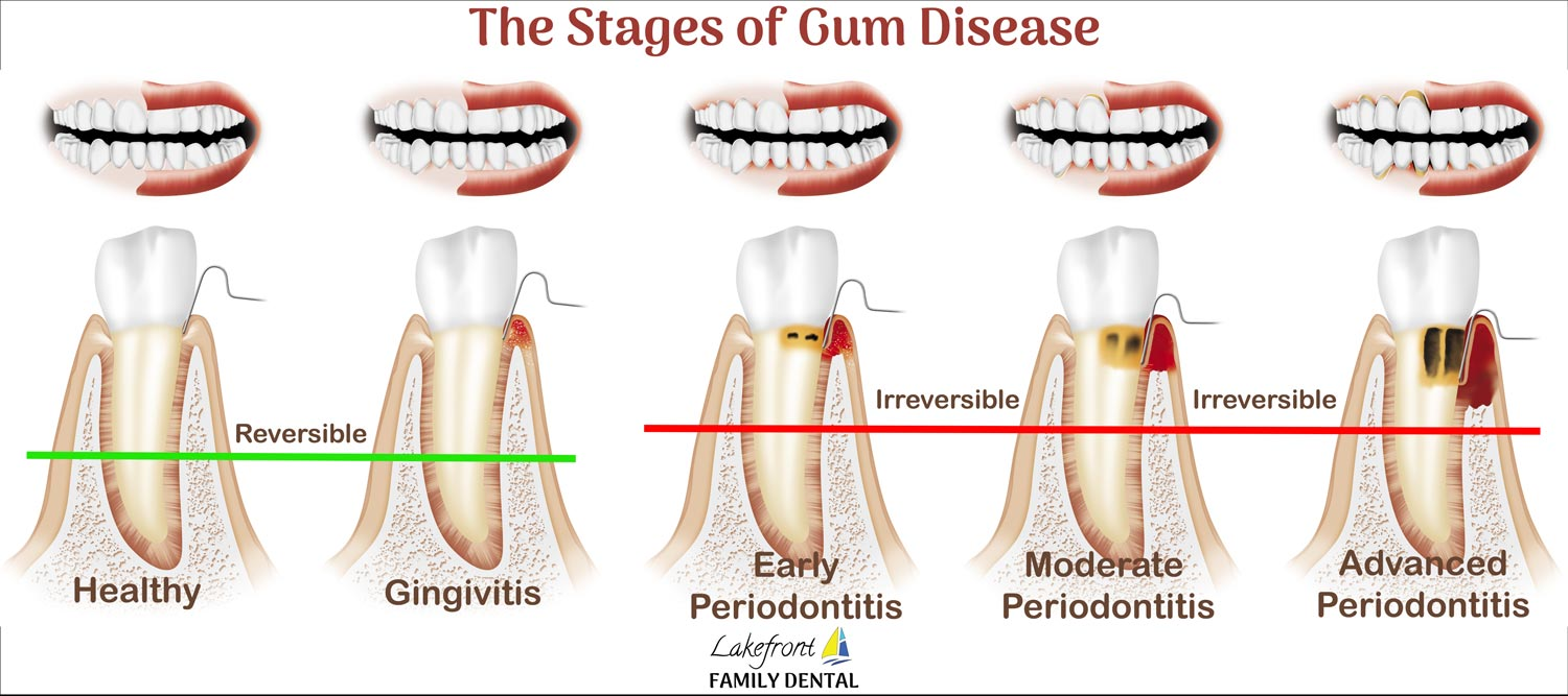 Gingivitis Healthy Gums