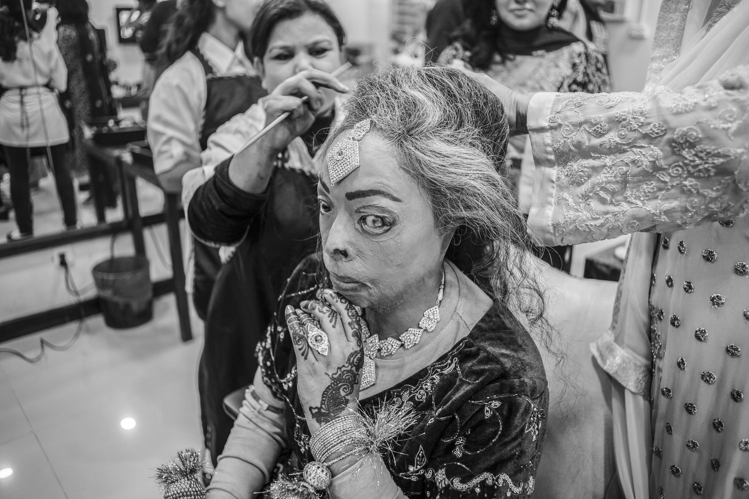 Sarwari Bibi, an acid attack survivor, gets dressed for her wedding ceremony at Depilex Salon, on Jan. 7, 2016 in Lahore, Pakistan.