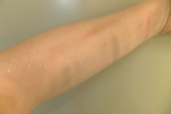 I washed my arm with water, no soap (after attempting to wipe it off dry.