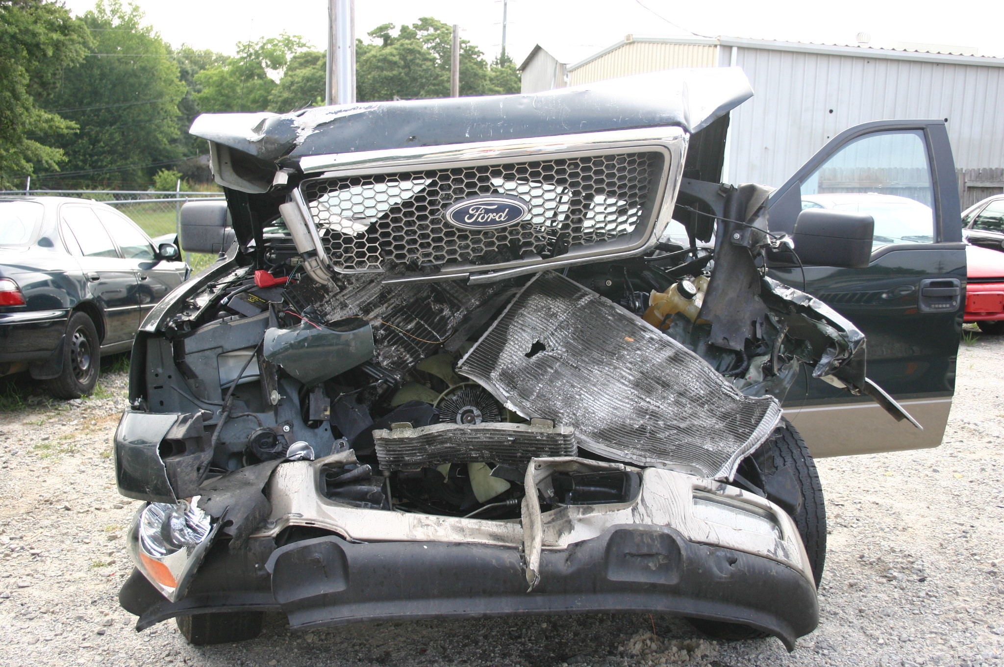 Catastrophic Truck Wreck with Surgery