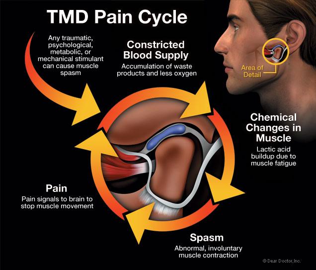 tmd-pain-cycle.jpg