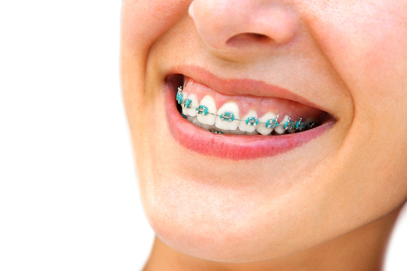 fixed-metal-braces-big2.jpg
