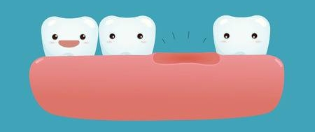 35414497-stock-vector-missing-tooth-of-dental.jpg