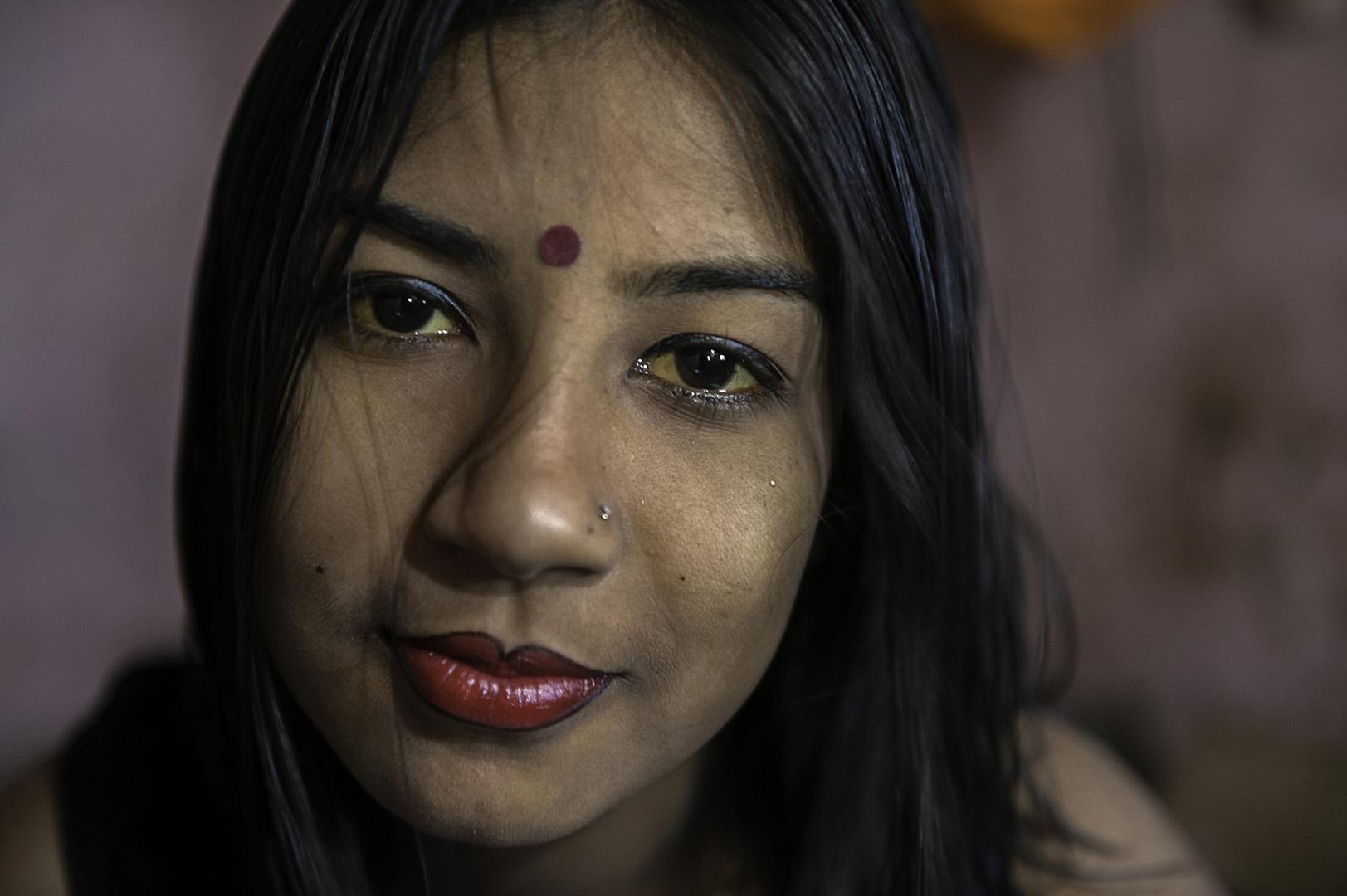 """""""Jaundiced Eyes"""" - Jessore, Bangladesh - 2010"""