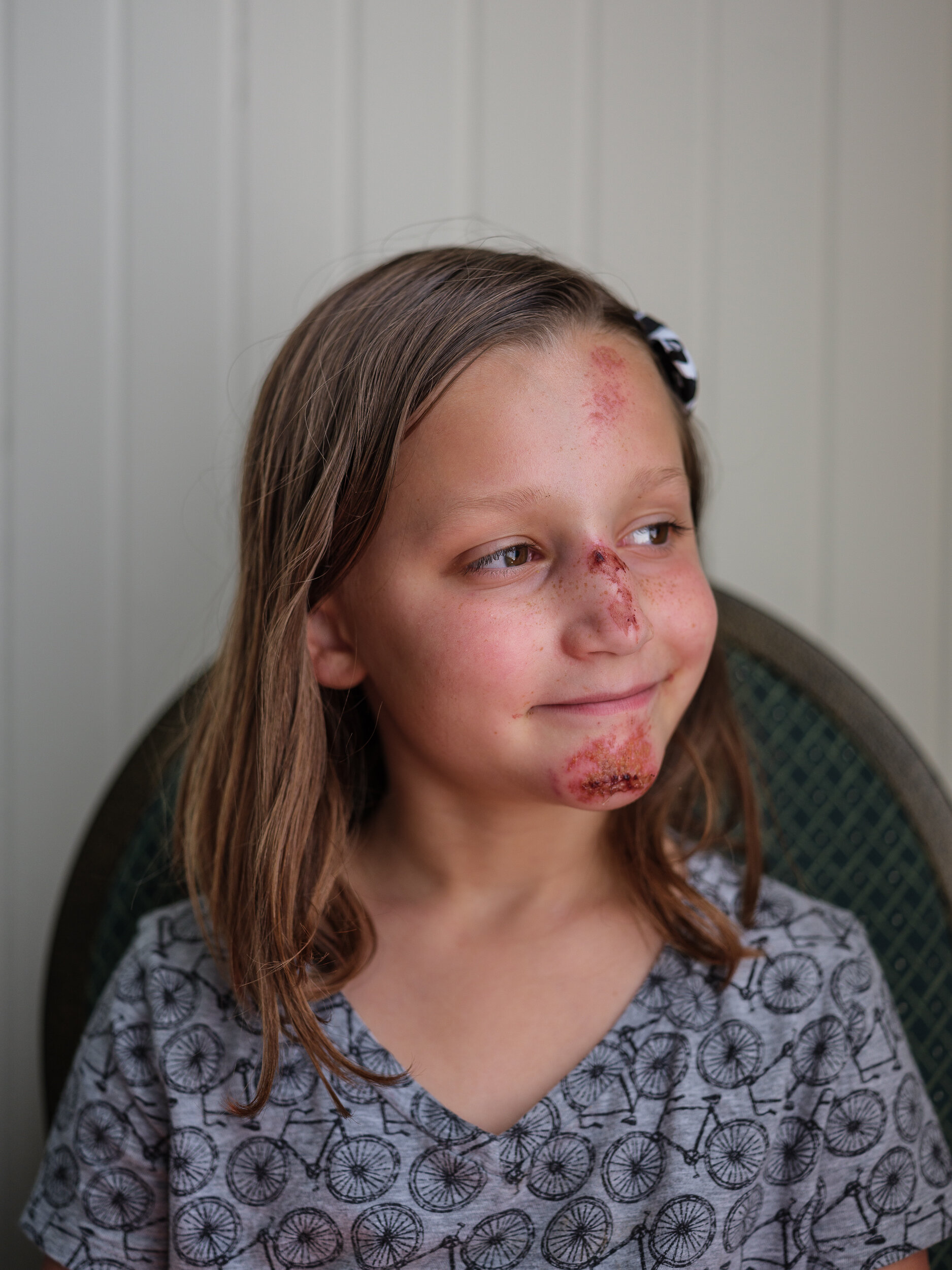 Mairyn, After the Scooter Accident, Waterford, Virginia, 2019