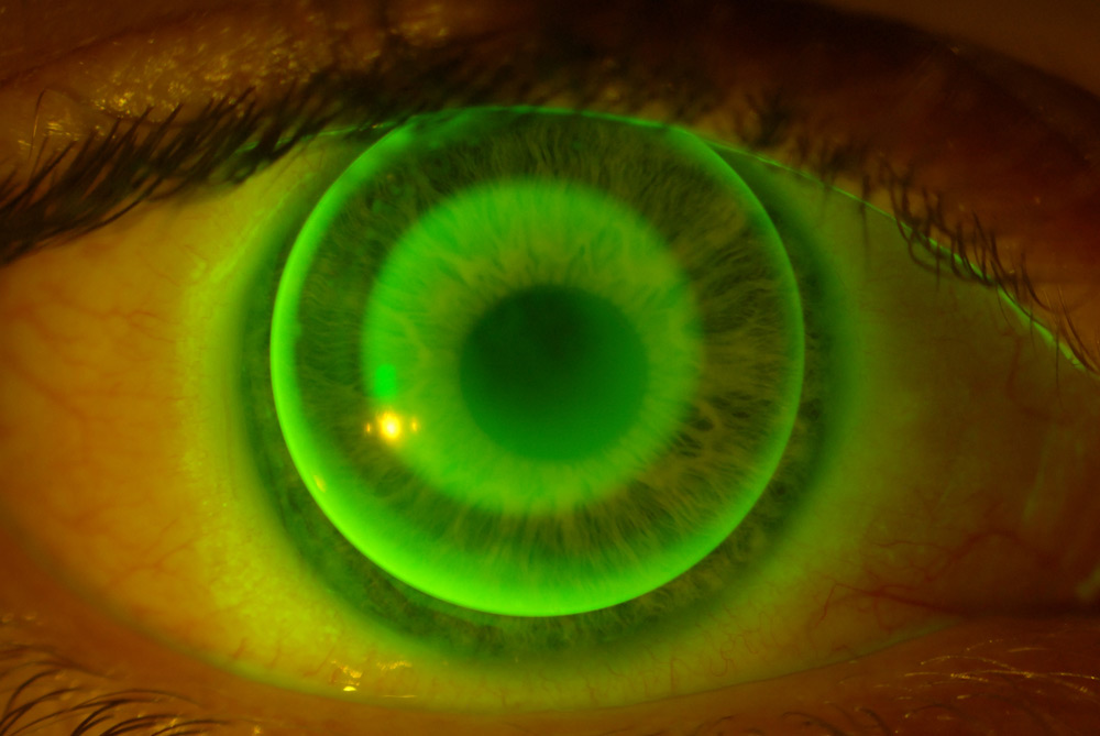 Coloured contact lenses at Eyre Eye Centre