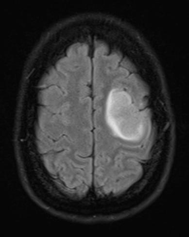 Brain+Tumour.jpg