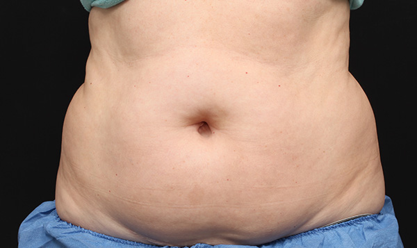 Before CoolSculpting; Photos courtesy of Leyda E. Bowes, MD