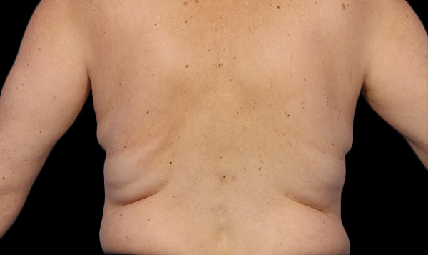 Before CoolSculpting; Photos courtesy of Grant Stevens, MD