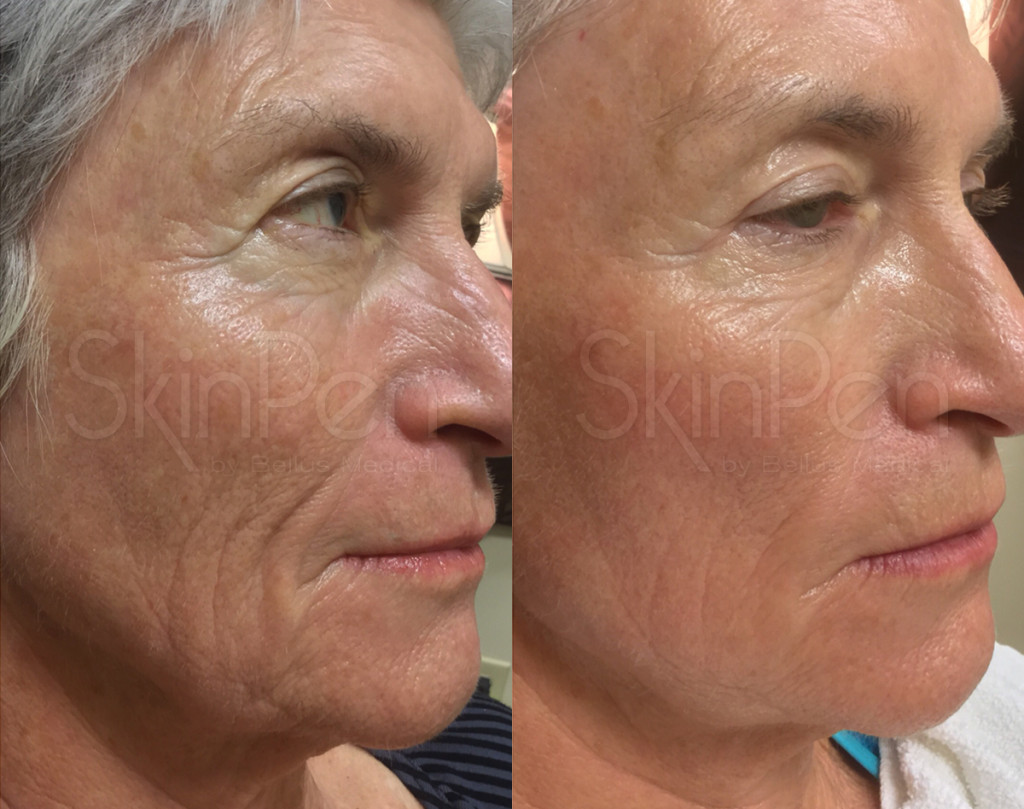 Gender: female / Age: 66 / Treatments: 3 / Frequency: monthly