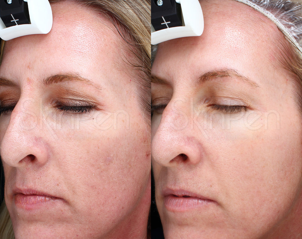 Gender: female / Age: 45 / Treatments: 3 / Frequency: monthly