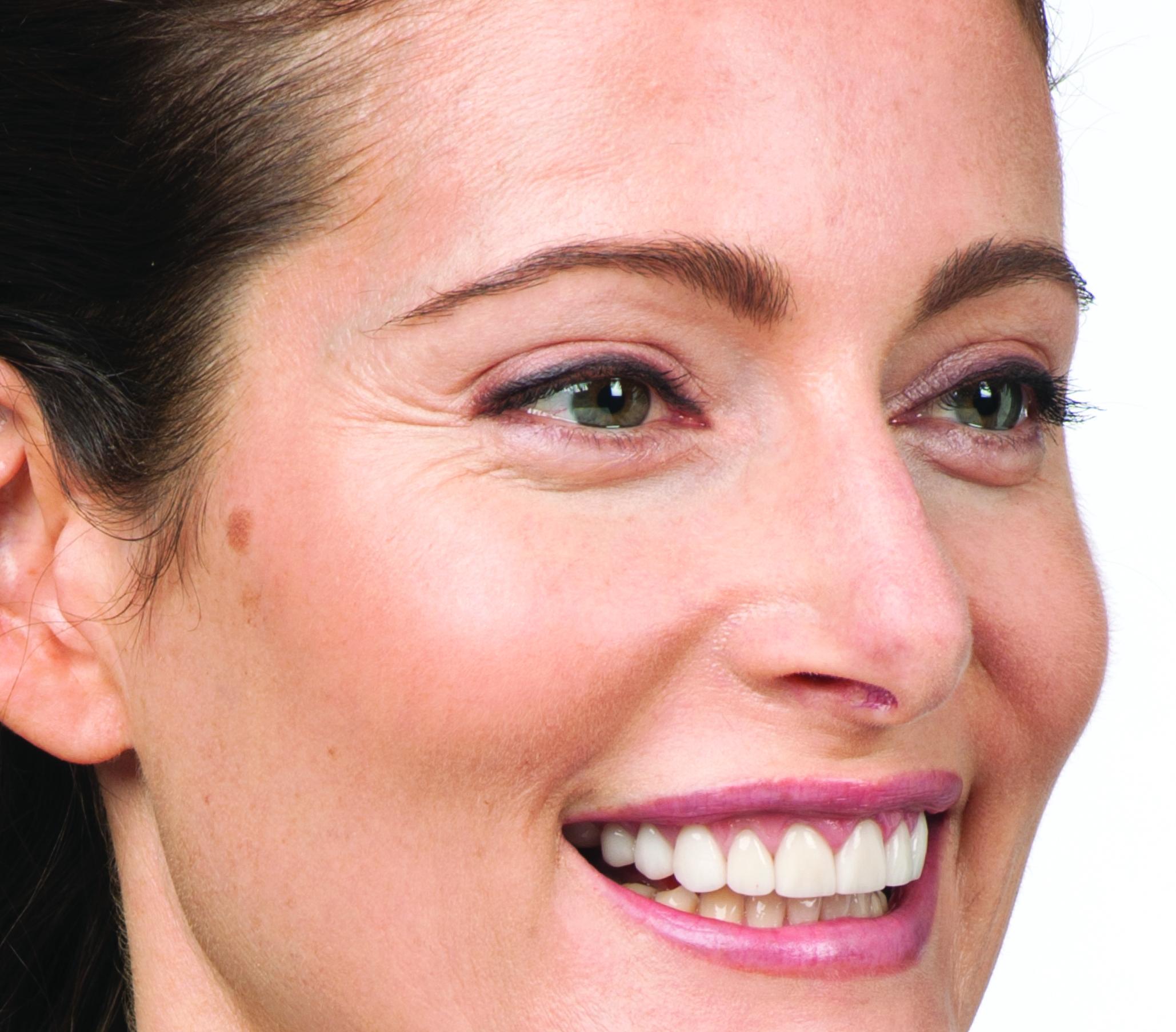 Before Botox (Hollis, 39)