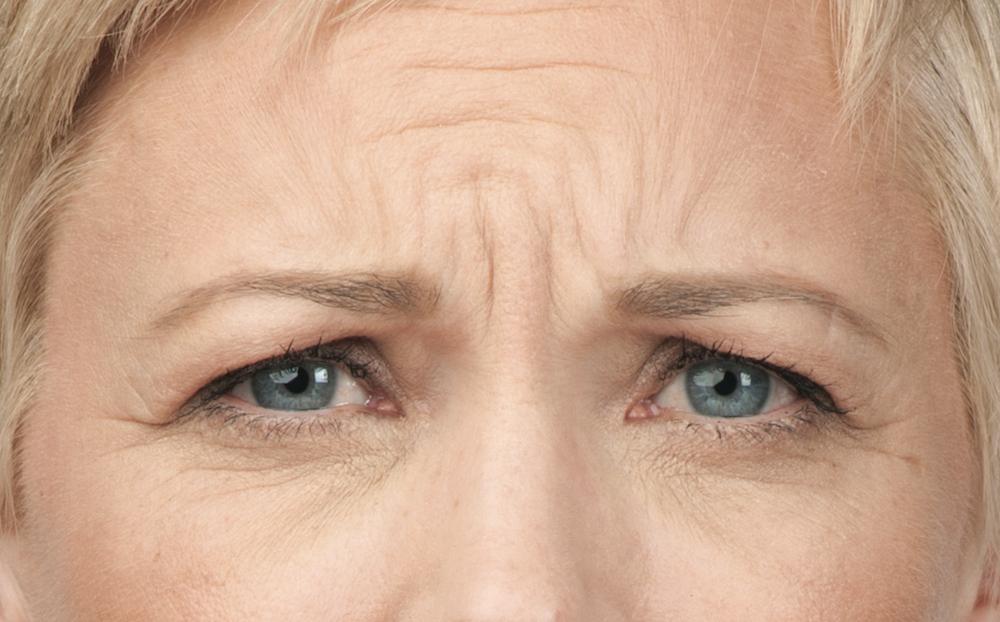 Before Botox (Angie, 50)