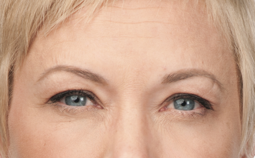 After Botox (Angie, 50)