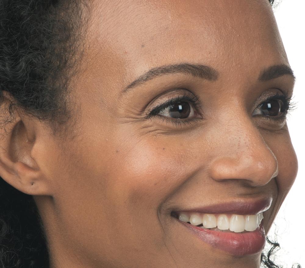 Before Botox (Ava, 37)