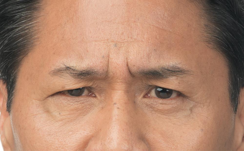 Before Botox (Clint, 54)