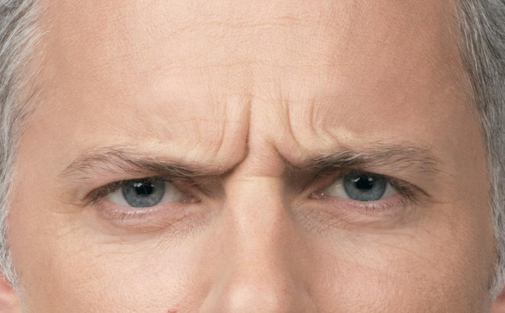 Before Botox (Max, 40)