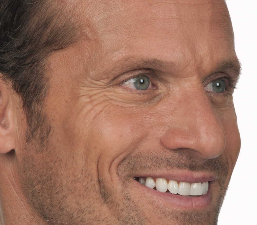 Before Botox (Stephen, 44)