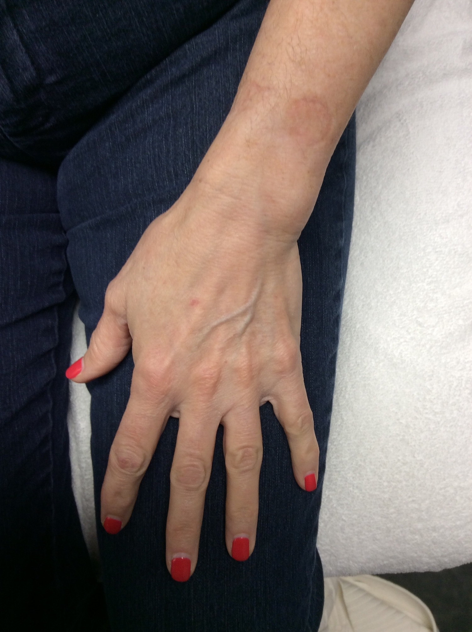 After Limelight (1 treatment, age 58)