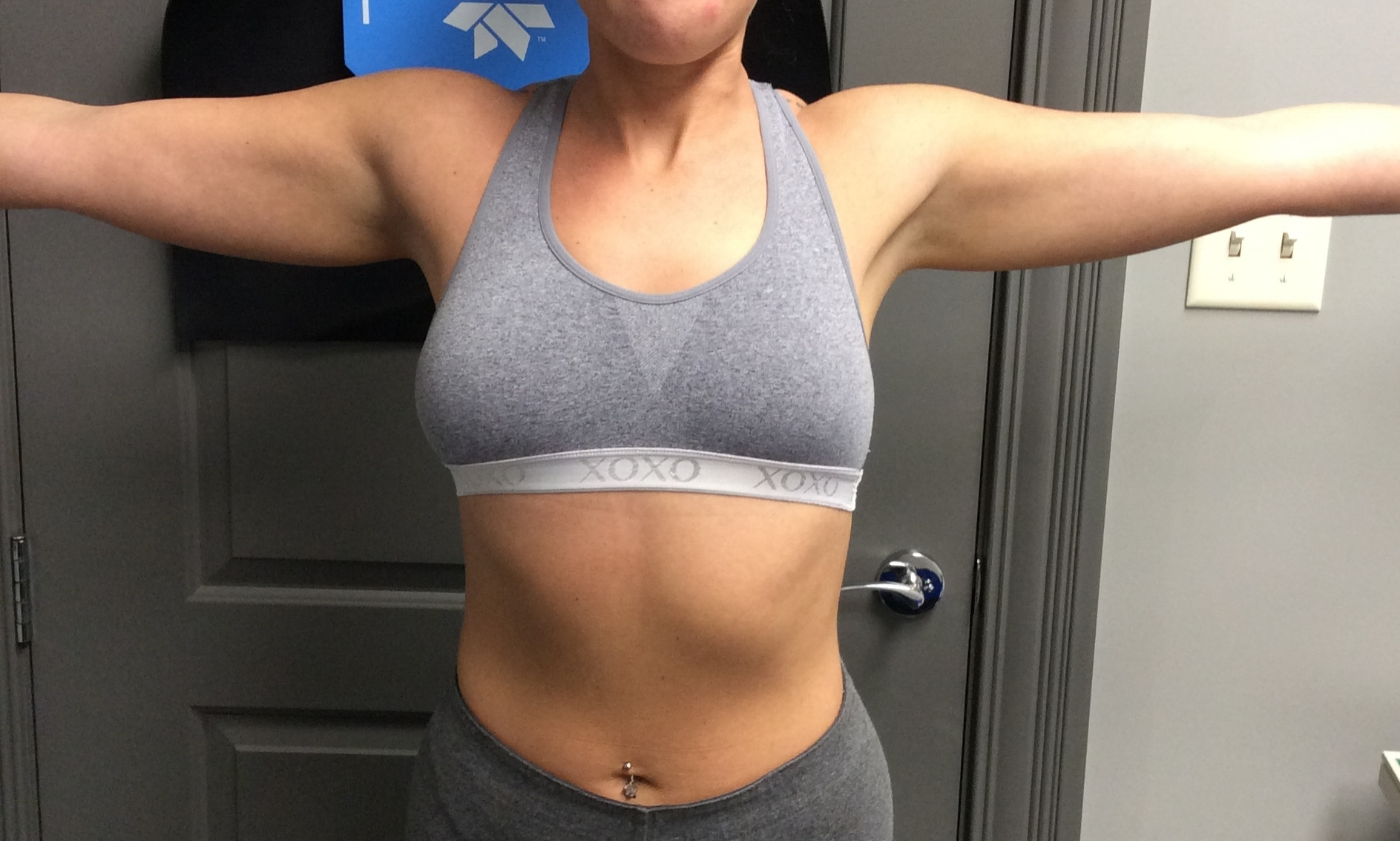 Pure Luxe Patient before CoolSculpting
