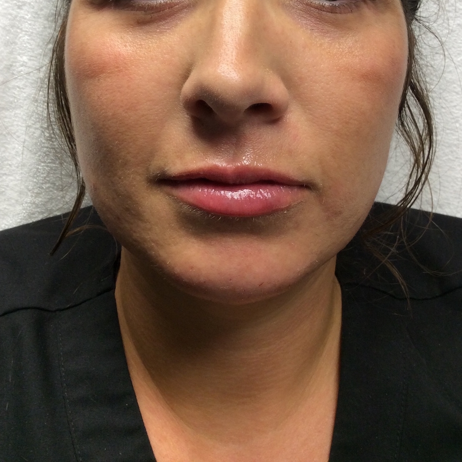 Pure Luxe Patient after Vollure and Juvéderm (chin and lips)