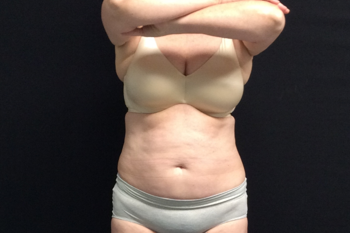 Pure Luxe Patient after 1 CoolSculpting Treatment (upper/lower abdomen) - individual results may vary